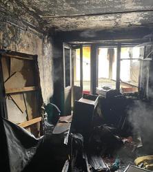 После пожара в девятиэтажке госпитализирован пенсионер