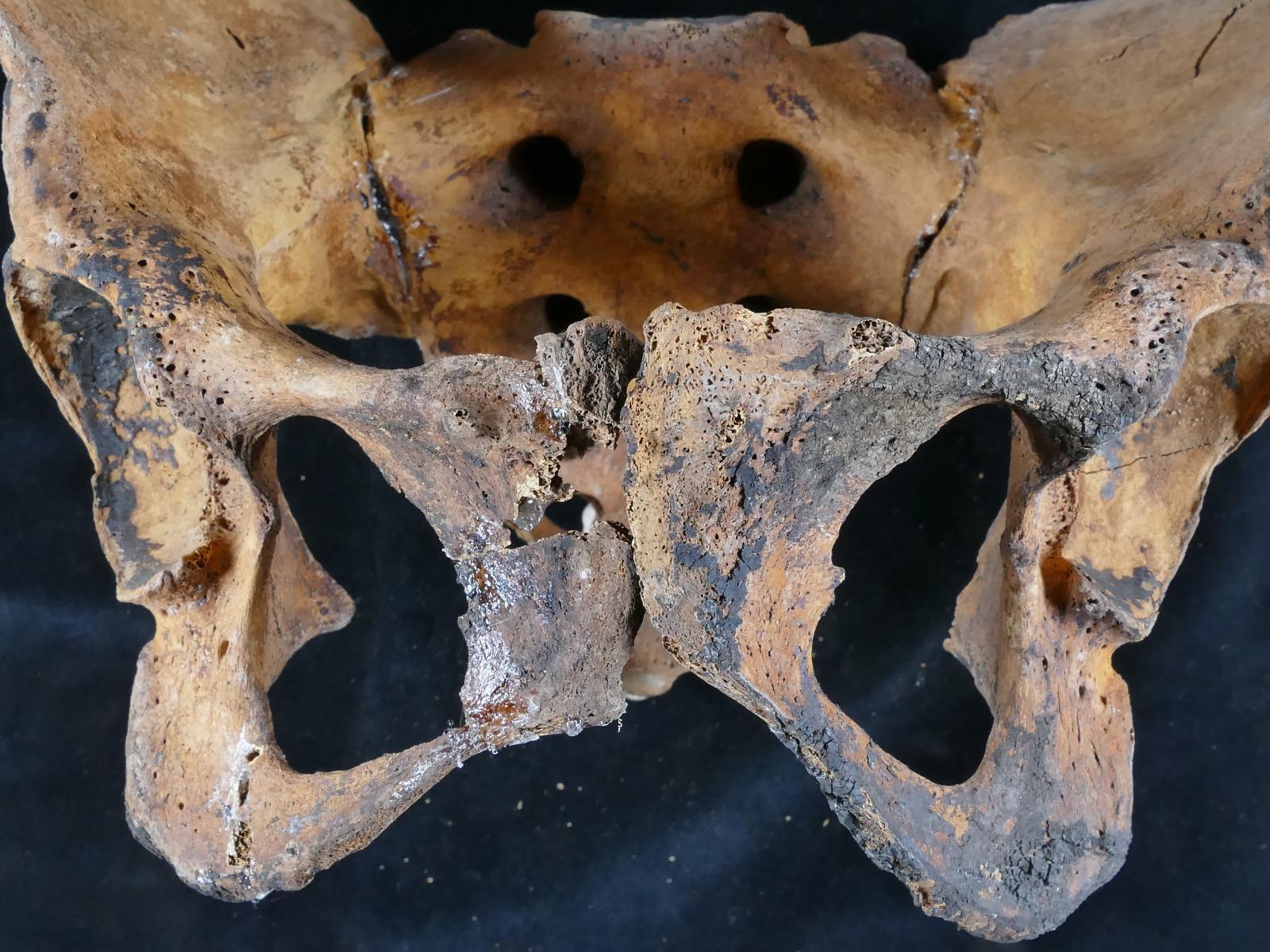 Найдено древнейшее свидетельство гинекологического лечения