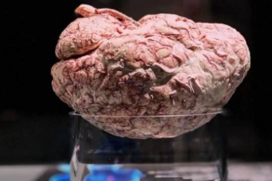 В России впервые открылась скандально знаменитая выставка трупов Гюнтера фон Хагенса Body Worlds
