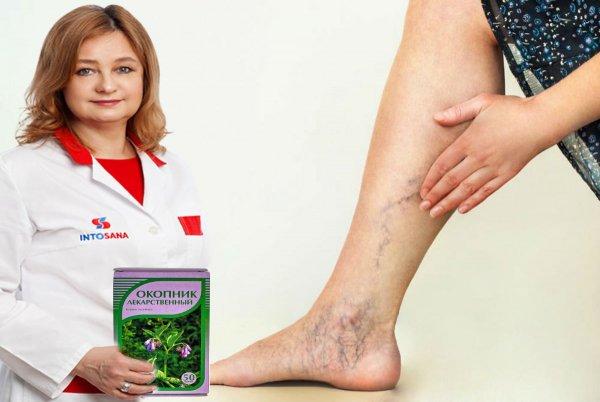 Ноги как в 20 лет: Домашняя растирка вылечит варикоз за неделю