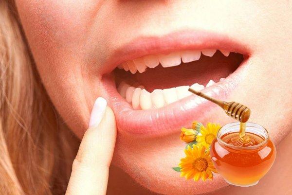 Травы и мёд – стоматит не пройдёт: Домашние подручные средства профилактики воспаления слизистой