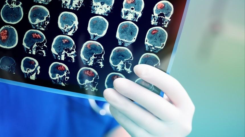 Какие безобидные симптомы могут говорить о раке мозга?