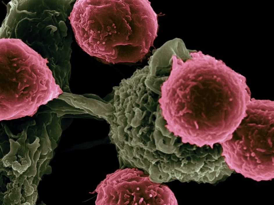 Учёные смогли точечно убивать раковые клетки
