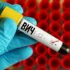 В Омской области возросла заболеваемость ВИЧ
