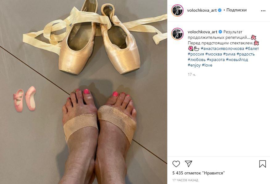 «Результат репетиций»: Волочкова показала изувеченные балетом ноги