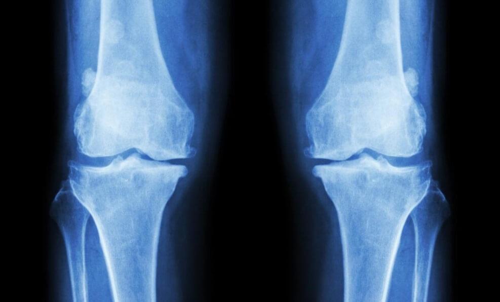 Почему у вегетарианцев хрупкие кости?
