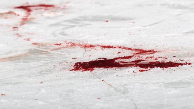 В Петрозаводске мужчина погиб от упавшего с крыши льда