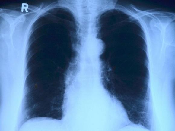 Ученые описали влияние коронавируса на легкие сразу после заражения