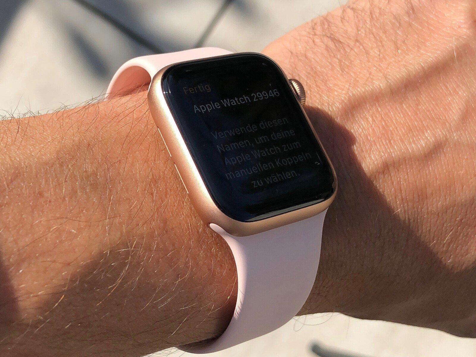 Apple запатентовала браслет для измерения артериального давления