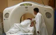 Эксперты назвали пять 'неожиданных' симптомов рака