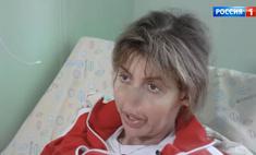«Потом выскочил фурункул…»: Алиса Казьмина откровенно рассказала, что же случилось с ее лицом