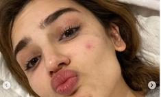 ТикТок-дива Дина Саева намекнула на проблемы со здоровьем, показав фото в слезах и с прыщами