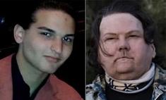 Из красавца в старика: в США впервые в мире провели успешную пересадку рук и лица 22-летнему парню