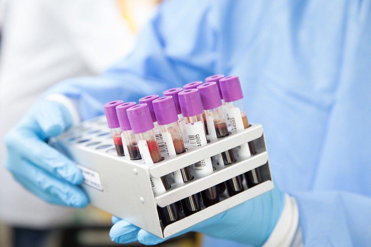 Как живут пациенты с редкими диагнозами в условиях ковидных ограничений